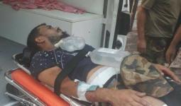 جريح نتيجة الاشتباكات في مخيم عين الحلوة