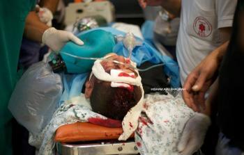 إصابة الطفل فارس زياد البايض