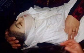 الطفلة منى عثمان .. آخر ضحايا الخذلان الصحي لفلسطينيي لبنان