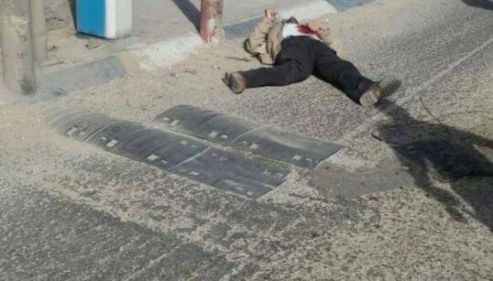 صورة الشاب بعد إطلاق النار