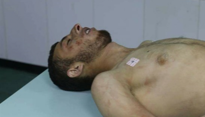استشهاد فلسطيني في مواجهات عقب هجوم المستوطنين في نابلس