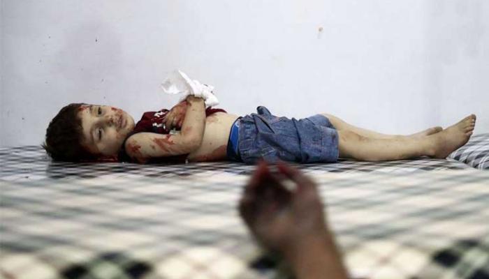 طفل استشهد جراء الغارات الروسية على مدينة حلب