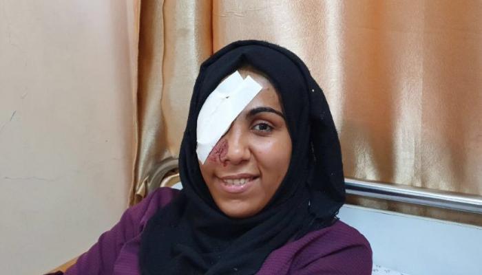 حملة تضامنيّة مع مُصابة من مُخيّم البريج فقدت عينها في مسيرة العودة